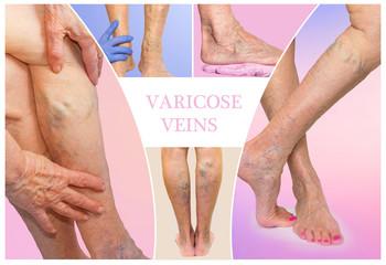 varixy|nohy|křečové|žíly|